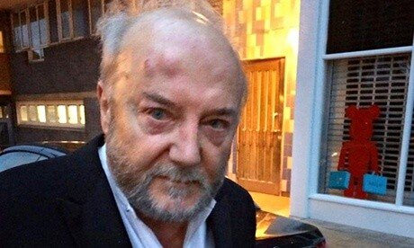 George Galloway after assault