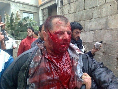 "Nidal Jannoud, Syrian victim of Obama's ""moderate opposition,"" shortly before his murder on 21 April 2011. At that time, the takfiri barbarians were under one umbrella group, the ""Free Syrian Army,"" before branching off into an infinite number of subsect gangs of mass murderers."