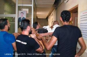 Injured from Obama regime terrorist thugs