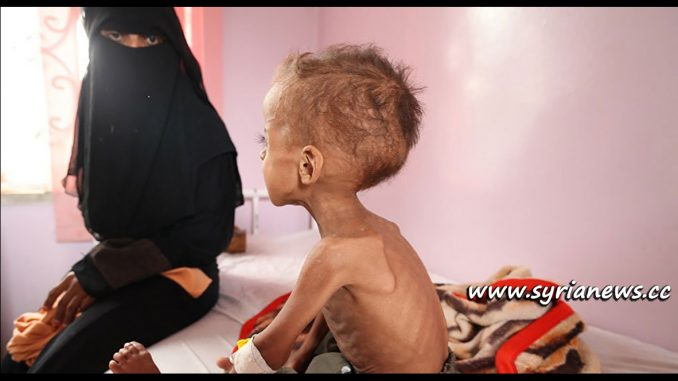image-Yemen Health Situation
